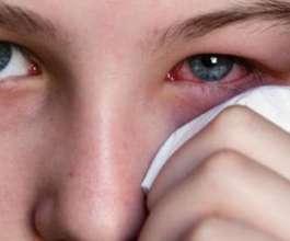 علامات تشير إلى وجود مياه بيضاء على العين